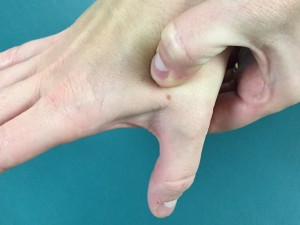 acupuncture point LI 4